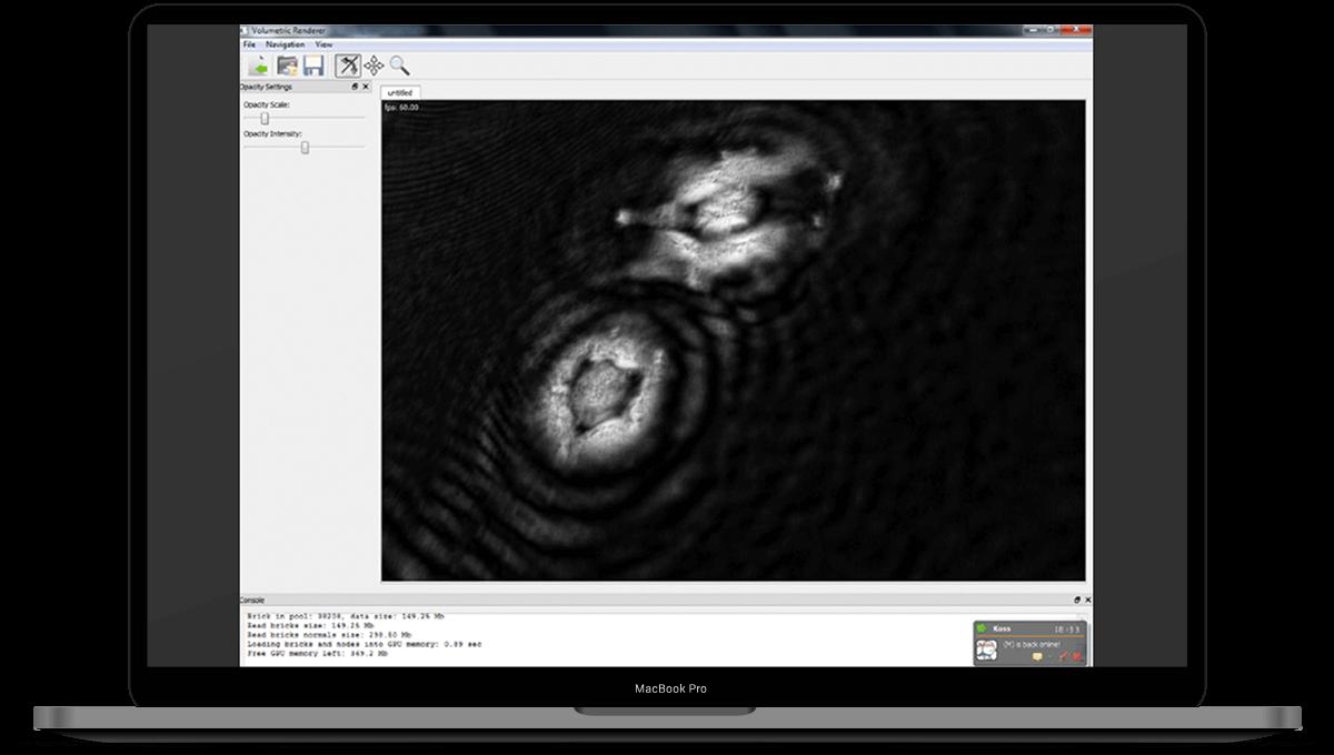 3D-Volumetric-Microorganism-Viewer main
