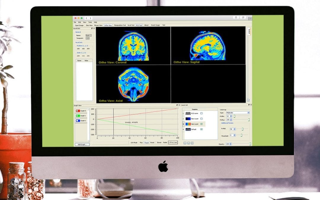 MRI Imaging Research Application