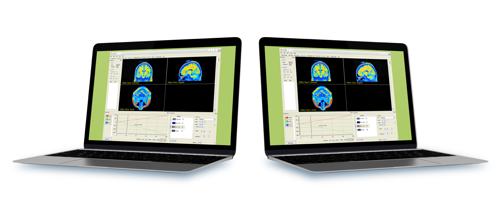 MRI-Imaging-Research-Application solution