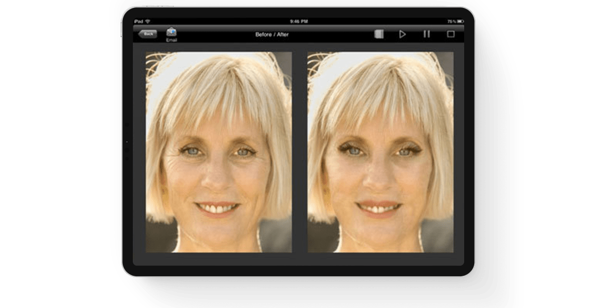Plastic-Surgery-Visualization-Application main