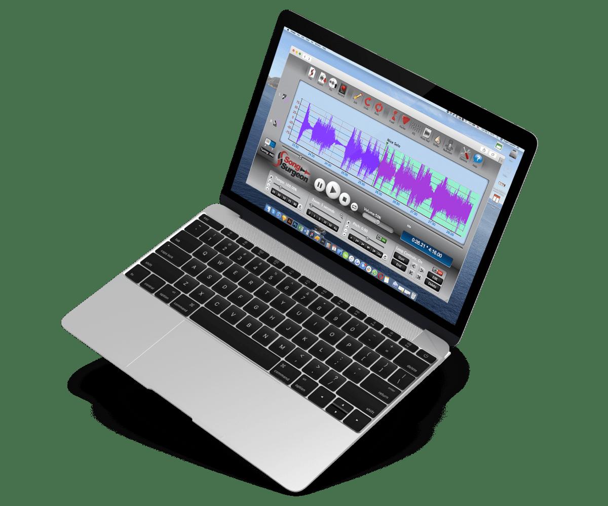 SoundBox vision