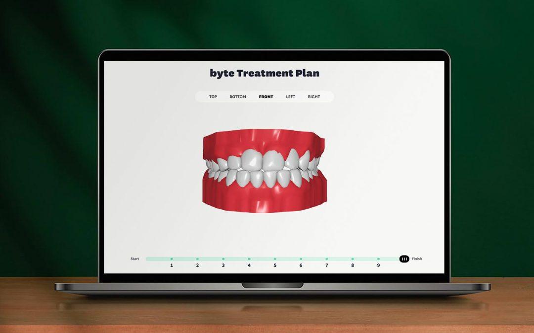 ByteMe 3D Treatment Viewer